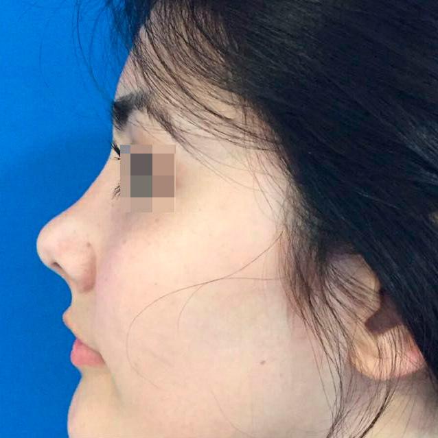 Rejuvenecimiento Facial,lifting facial, Cirugía Facial en Santiago